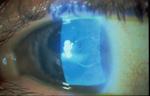 Acanthamoeba-keratitis-fluorescein