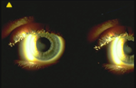 Central Corneal Clouding