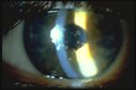 Congenital Corneal Opacities Granular Corneal Dystrophy