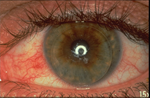 Conjunctival Injection