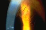 Corneal Vascularization