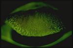 Follicles on Tarsal Conjunctiva Fluorescein