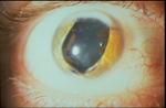 A Visual Affair Optometry Arlington Traumatic Aniridia